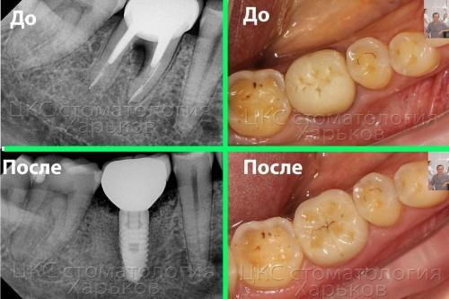 Зубная имплантация в Харькове без хирургических разрезов