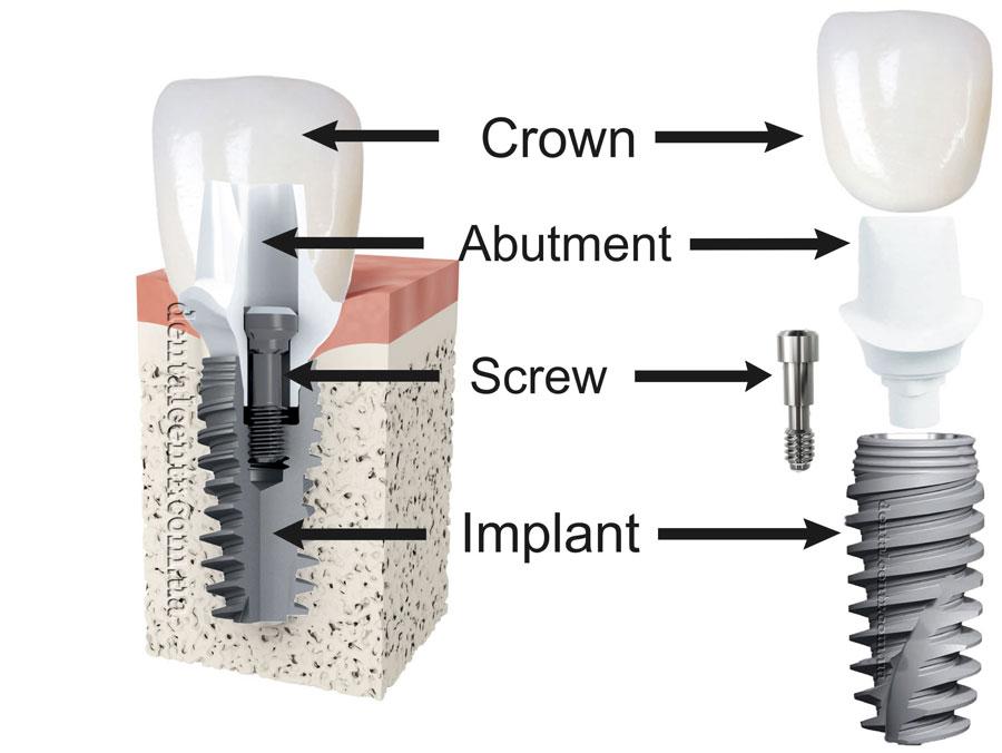 moderndentalimplantdesign