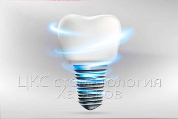 Зубная имплантация под ключ