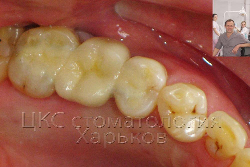 ПОСЛЕпротезирования зуба