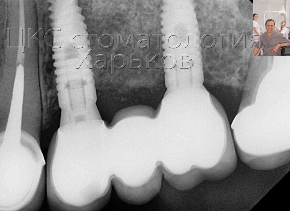 X-ray picture after dental implantation