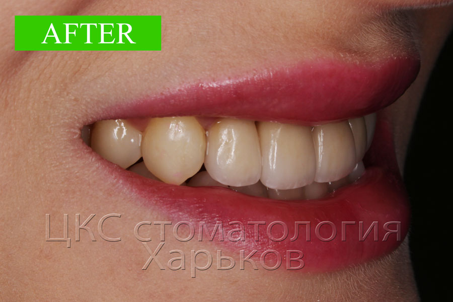 smile after prosthetics with dental crowns