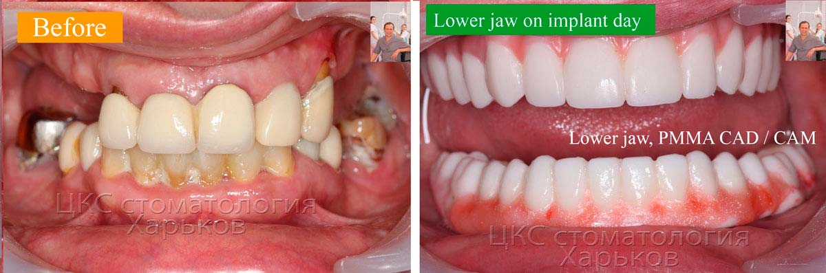 before and after dental implants digital dentistry