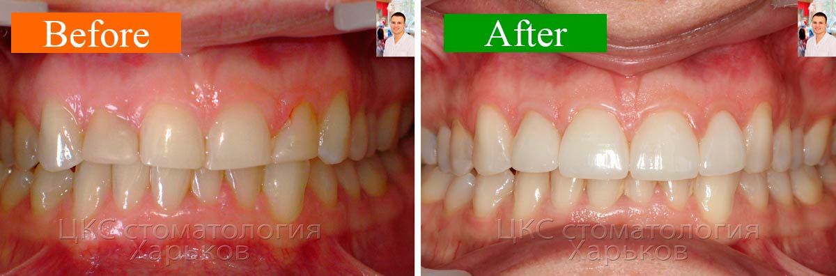 before and after digital dentistry