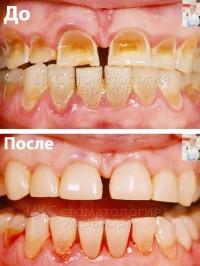 Неправильная чистка зубов способна навредить зубам. Как исправить проблемы.