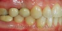 Классическая зубная имплантация - четыре шага к успеху