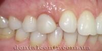 Двухэтапная немедленная зубная имплантация