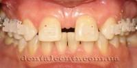 Комбинированное лечение: ортодонтия + имплантология
