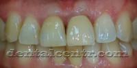 Методики формирования мягких тканей (десны) вокруг зубного импланта
