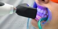 Стоматологическое отбеливание зубов в ЦКС Харьков