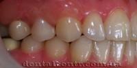 Временный зуб для двухэтапной зубной имплантации