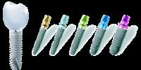 Выбор зубных имплантов