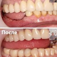Успешная зубная имплантация у пациента с сахарным диабетом
