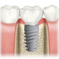 Скидка на зубные имплантаты Straumann