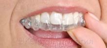 Элайнеры. Проводите ортодонтическое лечение быстро и эффективно!