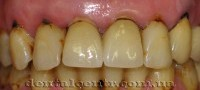 Курение разрушает зубы