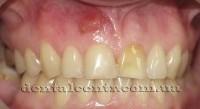 Киста зуба, гранулема, лечение без операции