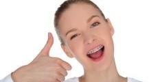 Лечение брекетами в ЦКС стоматология Харьков. Случай без удаления зубов