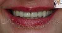 Стоматологическое чудо преображения улыбки