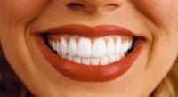 Prices for dental implantation in dentistry Kharkiv