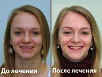 Исправить среднюю линию. Брекеты в Харькове