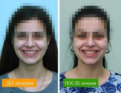 Лечение брекетами в Харькове