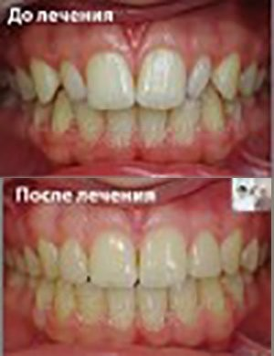 Лечение брекетами зубов шиповидной формы