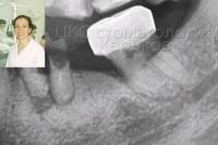 Лечение каналов зуба мудрости