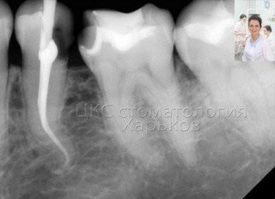 Лечение зубов в Харькове. Пломбирование корневых каналов