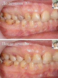 Почему зубы меняют цвет?