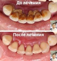 Профессиональная чистка зубов в ЦКС Харьков