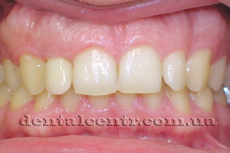 Протезирование зуба одноэтапной немедленной имплантация завершено фото