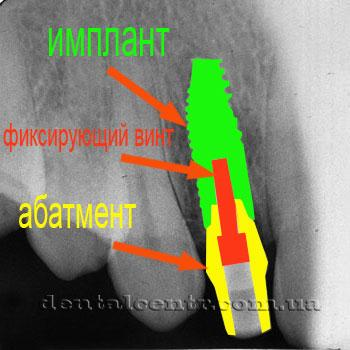 Схема конструкции: имплантат, фиксирующий винт, абатмент