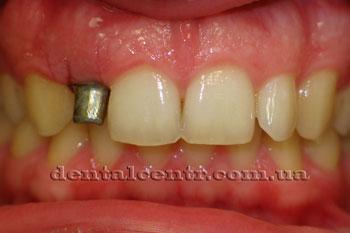 Через 8 дней после установки зубного имплантата