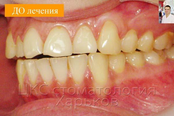 Плохой уровень гигиены, налет на зубах