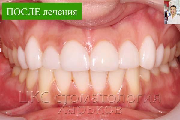 Зубы белые и красивой формы