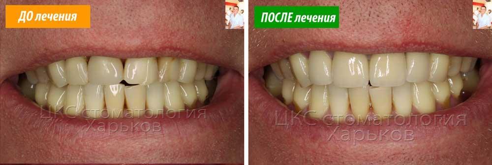 Сделать красивую улыбку в стоматологии Харьков