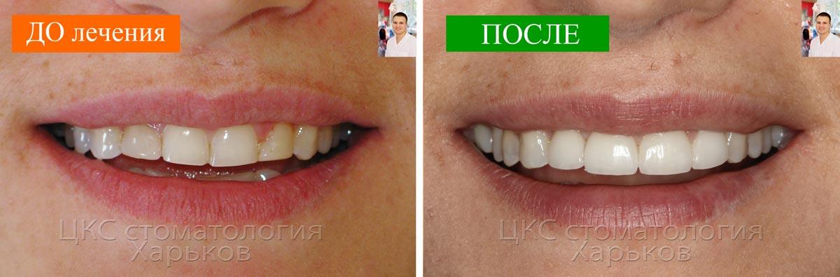 Керамические виниры изготовленные в стоматологии Харьков