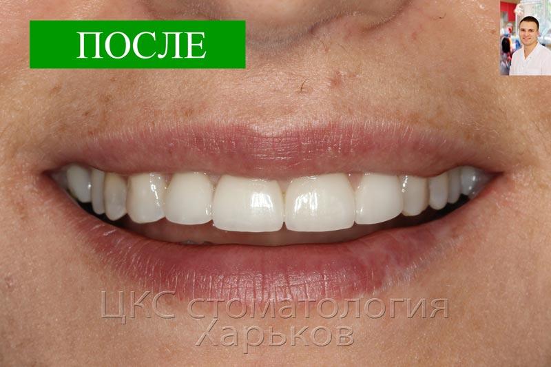 Улыбка как достижение харьковской стоматологии