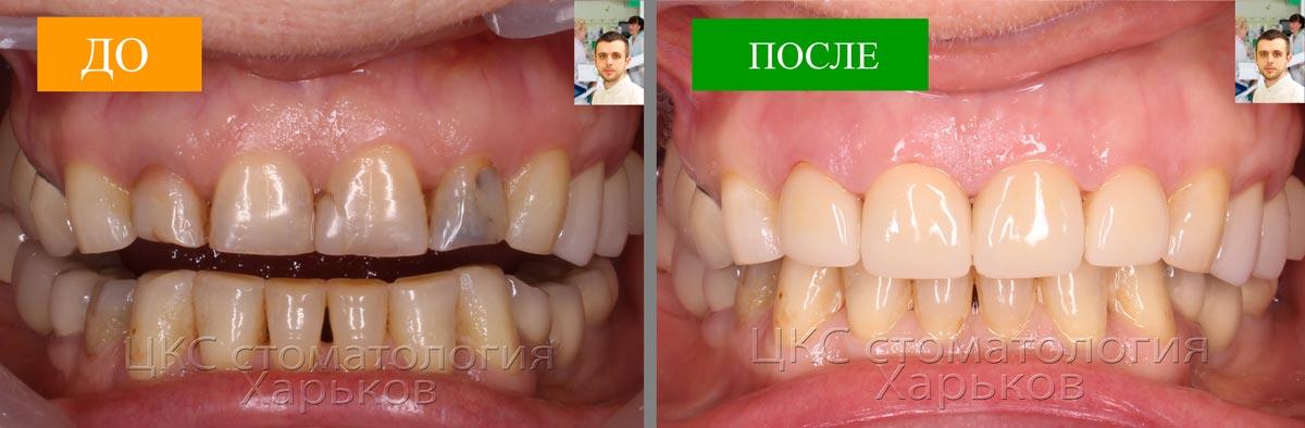 ДО и ПОСЛЕ лечения стоматологии Харькова