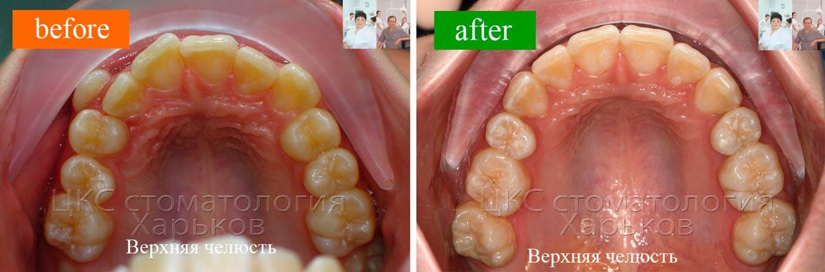 результаты работы ортодонта
