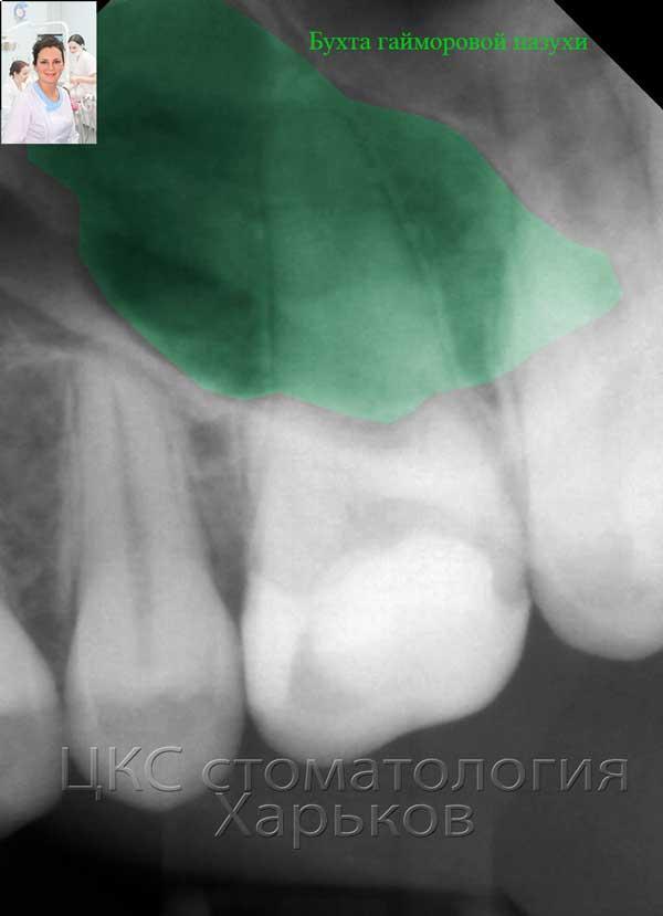Определение гайморовой пазухи на рентгеновском снимке