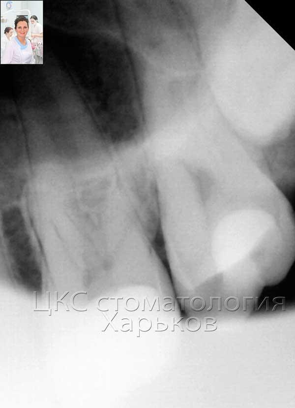 зуб мудрости на рентгеновском снимке