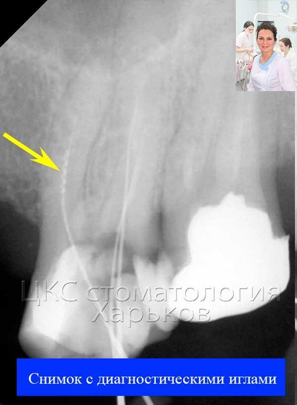 Рентгенограмма зуба с обломком инструмента