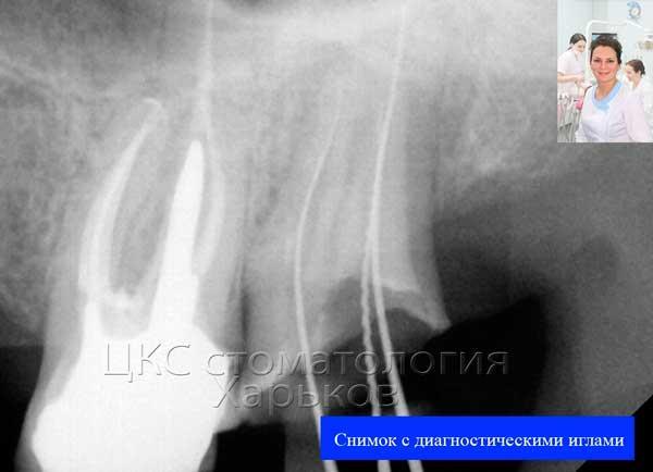 Зуб с культевой  штифтовой вкладкой после эндолечения