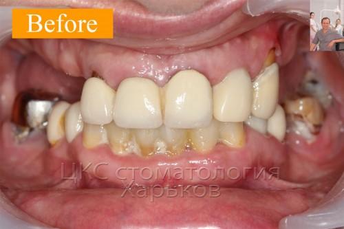 ДО проведения дентальной имплантации, зубы разрушены