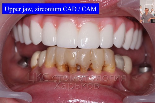 Зубной протез с винтовой фиксацией опирающийся на дентальные импланты