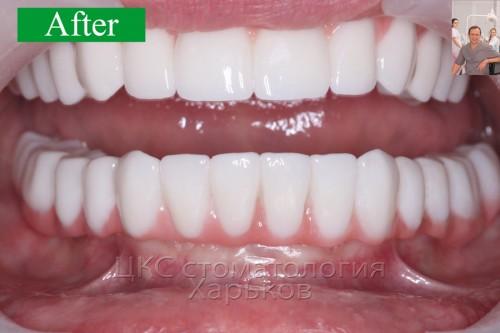 ПОСЛЕ протезирования с применением зубных имплантов