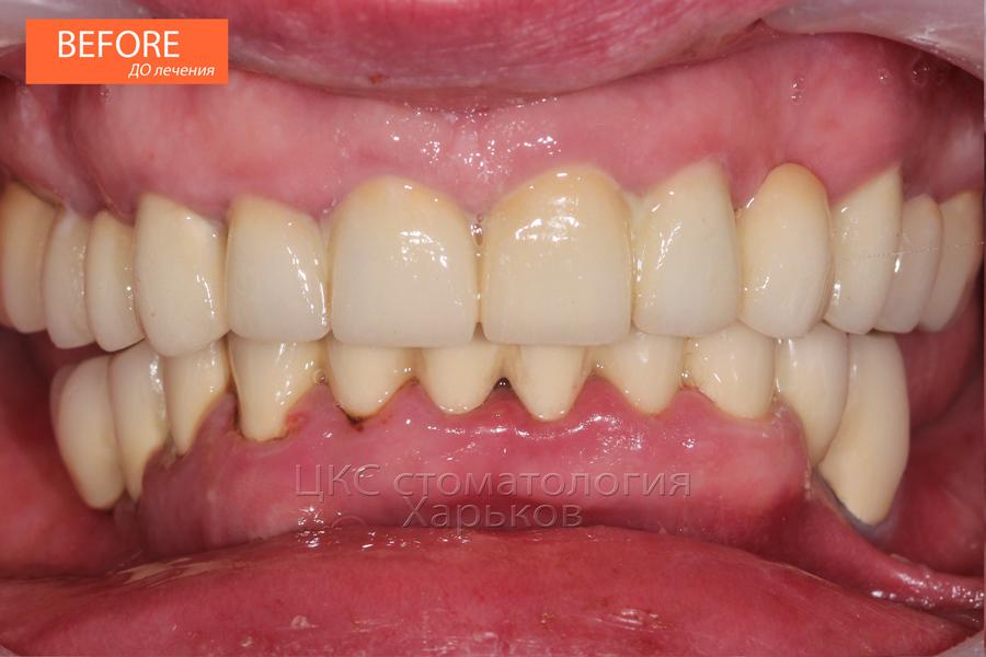 Зубы ДО имплантации