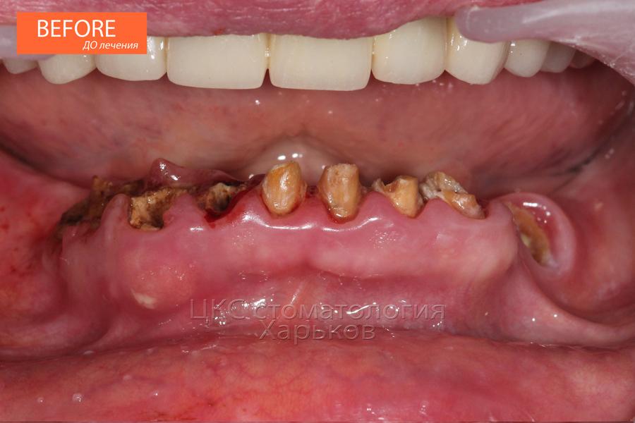 Зубы сильно разрушены